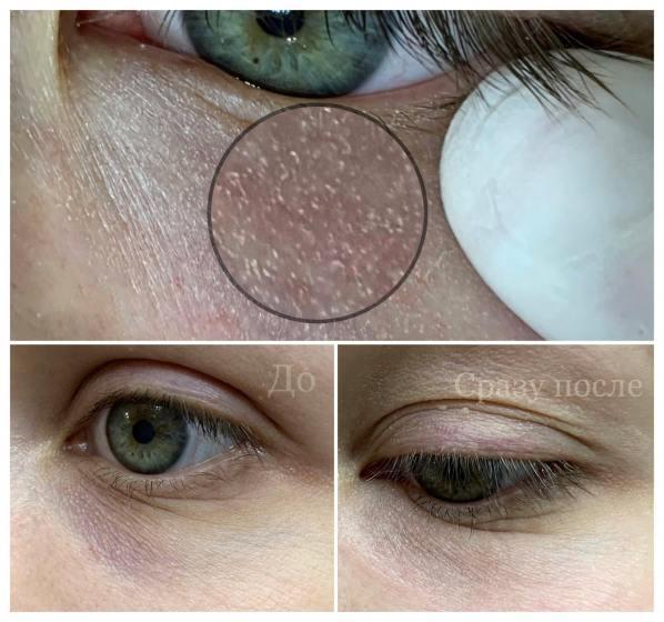 Сделать перманентный макияж ( татуаж) камуфляж синяков под глазами - Студия перманентного макияжа и татуировки ТМ